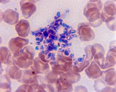 Light micrograph (LM) of a blood smear from a healthy patient, showing red blood cells and platelets. Magnification unknown.