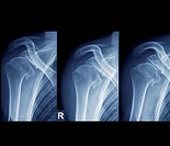 Coloured X-rays of the right shoulder of a 36 year old patient that has repeatedly dislocated the joint. At left the shoulder is in neutral rotation, ...