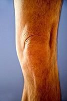 40 years old , 40-50 years old , 40's , Adult , Anatomy , Arthritis , Articulation , Biomechanical , Body , Bones , Bursitis , Care , Caucasian , Dege...