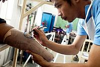 Victims of land mines are attended to at a hospital in Phnom Penh, Cambodia administered by the NGO Cambodia Trust.