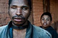 Blind man. Behind him, the boy who helps him. At Ambositra ( Madagascar).