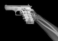 hand holds a gun under x-ray.