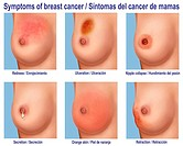Illustration of the different characteristics of women affected by breast cancer.