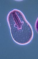 Gastrula. Embryo.
