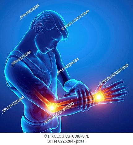 Man with arm pain, illustration