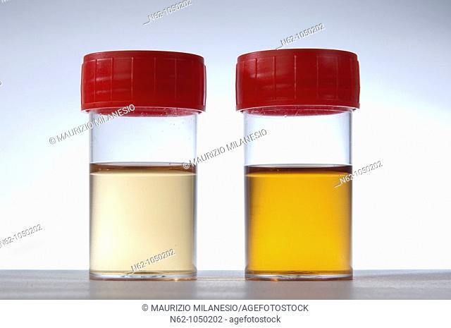 Tube urine prepared for testing