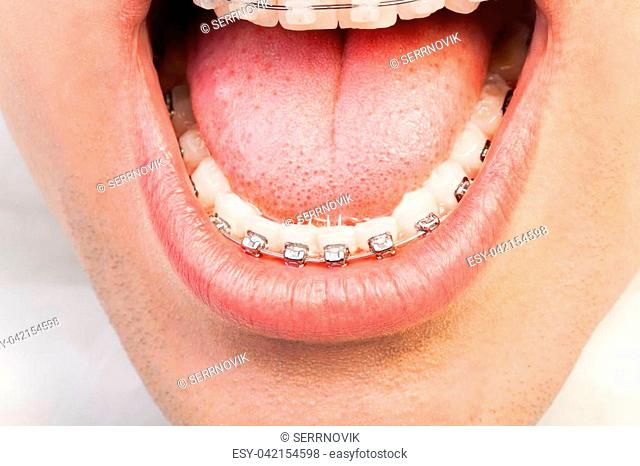 Close-up picture of man's wide opened mouth with orthodontic braces