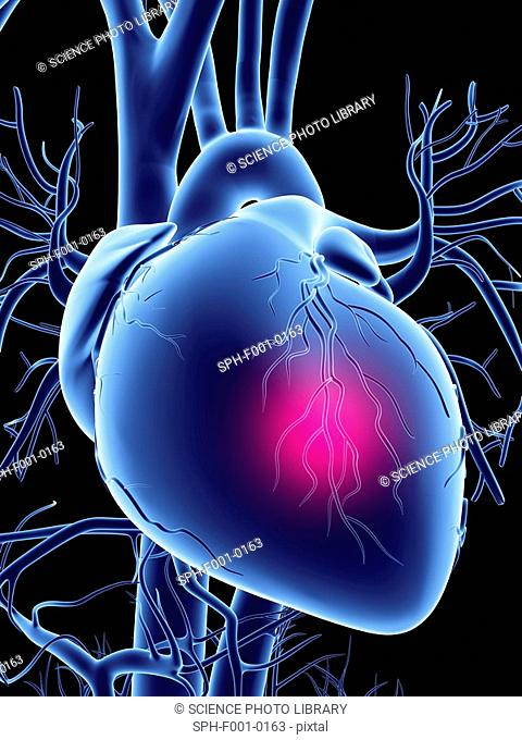 Heart attack, conceptual artwork