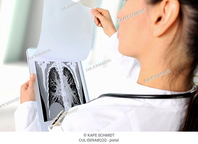 Doctor looking at image of chest