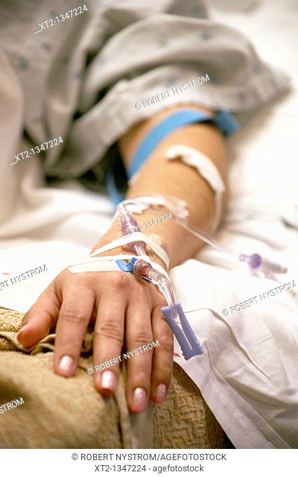 A womans arm and hand with IV tubes and tape in a hospital bed