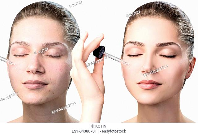 Cosmetic oil applying on woman's face. Before and after cosmetics oil. Isolated on white