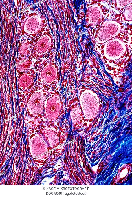 Spinal cord: Spinalganglion Ganglionnervosum , crossing from the spinal cord to the brain. 250x Azanfaerbung. Photo-Technical Short Cuts: LUMEN = optical...
