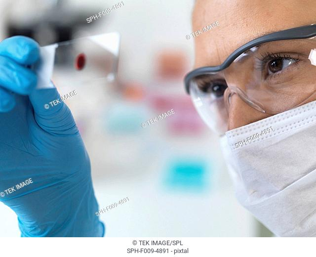Female scientist holding a microscope slide with a blood sample