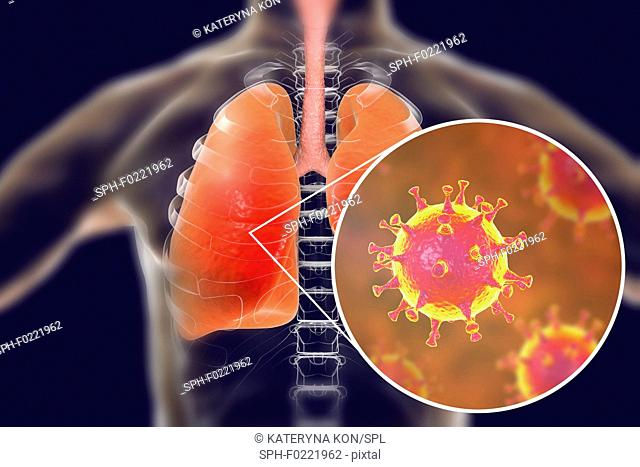 MERS virus infection of lungs, conceptual illustration
