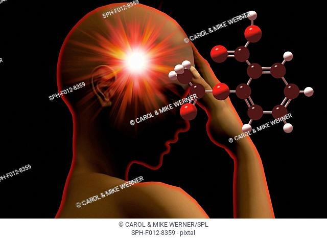 Illustration of a woman suffering from a headache with the molecular model of aspirin. Atoms in the molecule are represented as spheres and are colour-coded:...