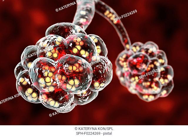 Pneumococcal pneumonia, illustration