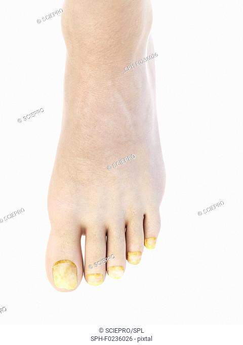 Illustration of toe nail fungus