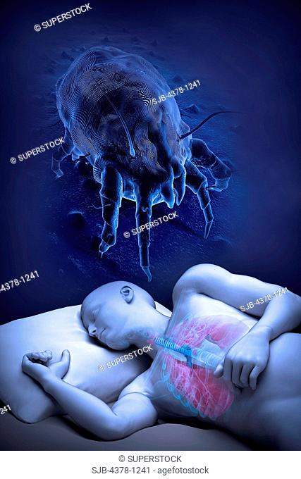 Image of sleeping human with a magnified dust mite overhead