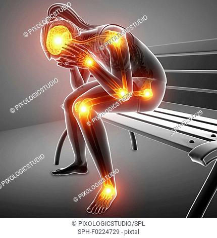 Woman with joint pain, illustration