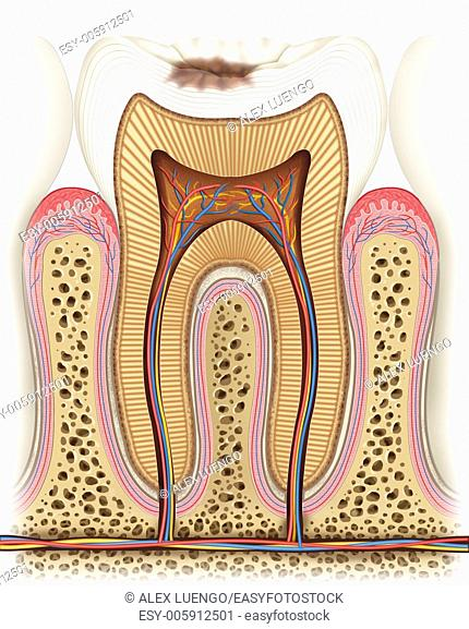 This teaches us a carié image state in which it begins to erode the enamel on the crown of the tooth, it will continue growing as the days go if the patient...