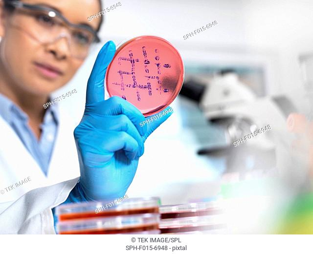 MODEL RELEASED. Scientist examining microbiological cultures in a petri dish