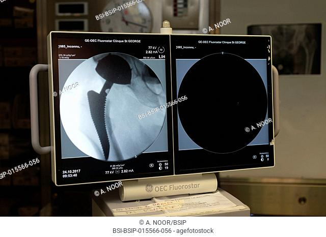Reportage in the orthopedic surgery service in Saint George Clinic, Nice, France. Fitting a dual mobility hip prosthesis in a patient suffering from...