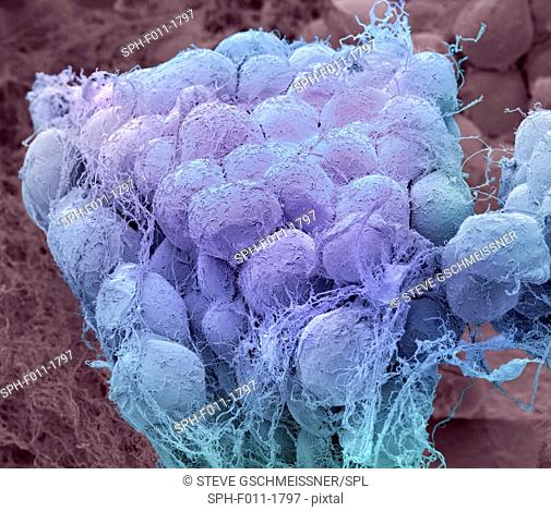 Fat tissue. Coloured scanning electron micrograph (SEM) of a sample of fat tissue, showing fat cells (adipocytes, blue/purple) surrounded by fine strands of...