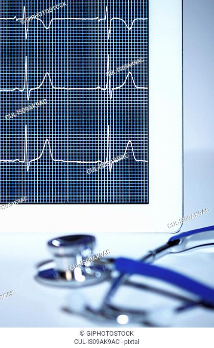 Acoustic stethoscope and electrocardiogram (pulse trace) displayed on a digital tablet screen