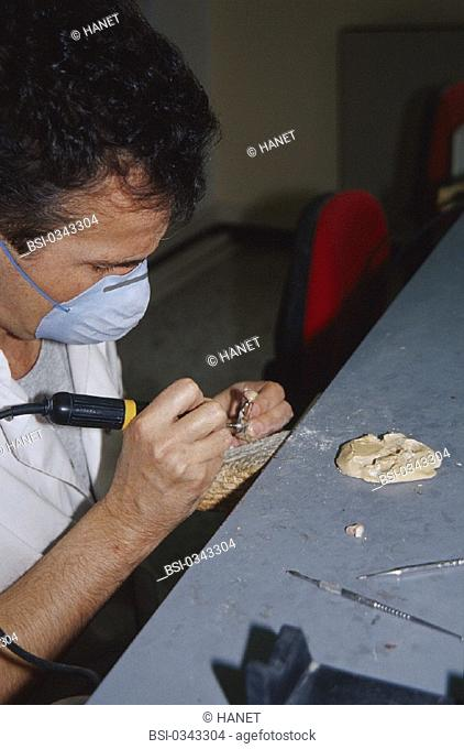 DENTURE FITTER<BR>Photo essay.<BR>Prosthetist, with small carving machine, used for all polishing and sculpting work