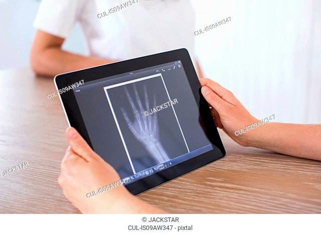 Woman holding digital tablet with x-ray image of hand on screen