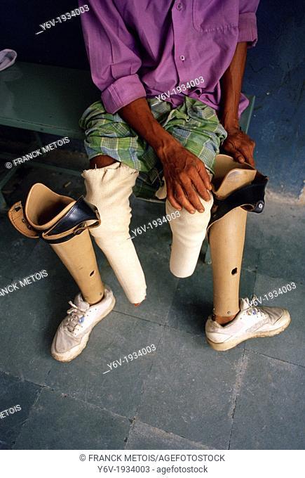 Amputee with two leg prosthesis. Jaipur, Rajasthan, India