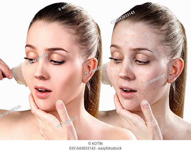 Beautiful woman remove her old dry skin from face. Before and after treatment,. Isolated on white