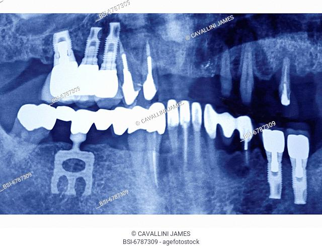 Dental panoramic x-ray , reconstruction of various teeth