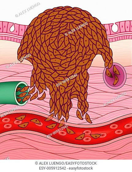 Schematic illustration of cancer cells and metastasis reaching expand through blood and lymph vessels