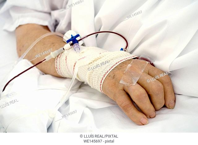 closeup of hands of a woman in a hospital bed with a connection to a serum
