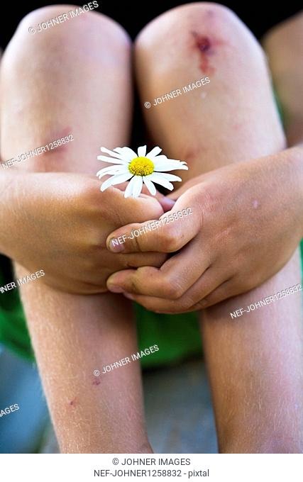 Boy with scrapes on knees holding ox-eye daisy flower