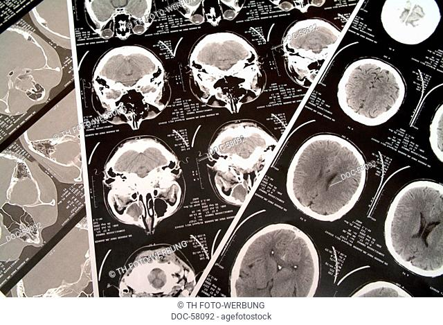 X-ray photograph - roentgenogram of computer tomography of a brain
