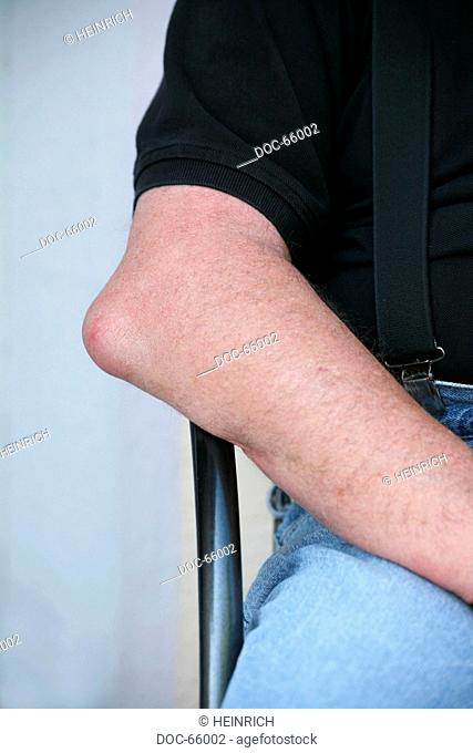 elbow of a male senior having bursitis - bursa - inflammation