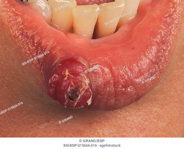 Botryomycosis of the lip