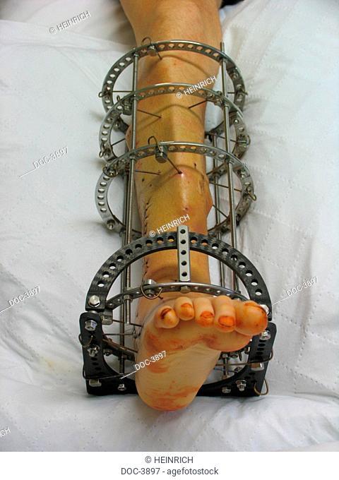 A lower leg to open debris break is extended with Ilizarov-technique