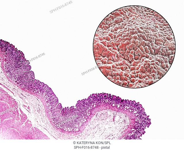 Stomach mucosa. Light micrograph (bottom left) and computer illustration (top right) of the lining of the stomach, known as the mucosa
