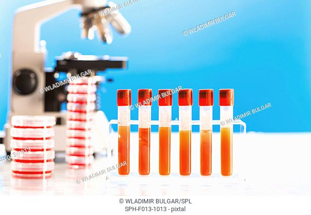 Blood samples and microscope