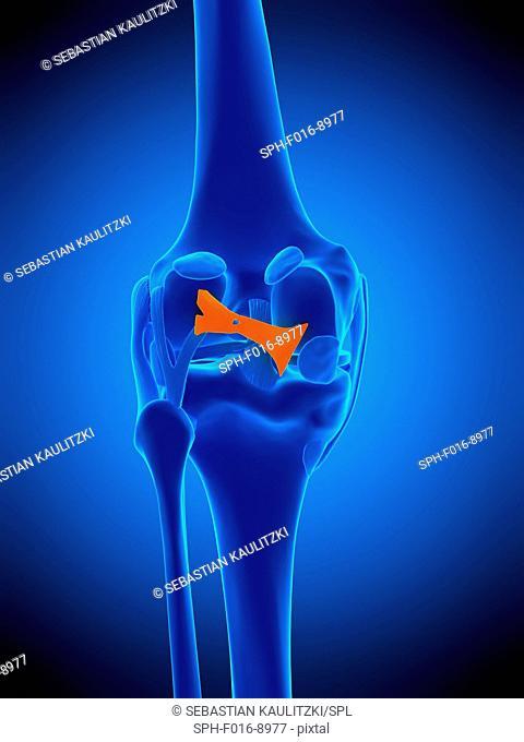 Illustration of the oblique politeal ligament