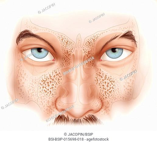 Illustration of the absence of sinuses in the superhero Aquaman. This particularity enables him to swim deep under water without having to respect the...