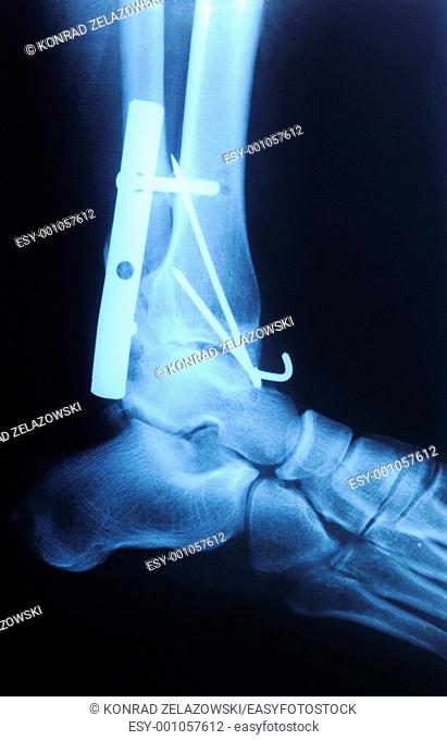 authentic x-ray picture of human fracture ankle with metal plate and screws