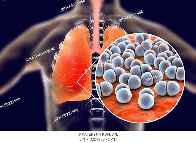 Pneumonia caused by Streptococcus pneumoniae bacteria, conce