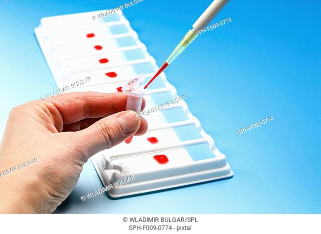 Person dropping blood sample into a vial with a pipette