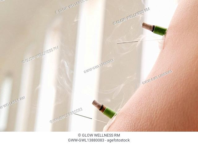 Acupuncture needles and herbal cigars on a person's arm