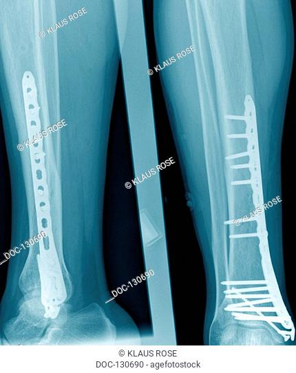X-ray photographs of a surgical practice. fracture of the lower leg
