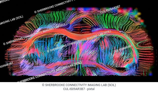 Axial view of rat brain connectivity. The corpus callosum is seen, anterior commisures and connections into the gray matter. Images are 300 microns